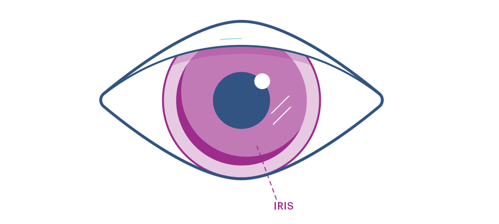 Iris Eye Diagram
