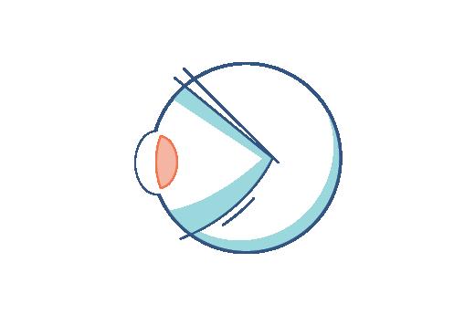 Presbyopia Causes