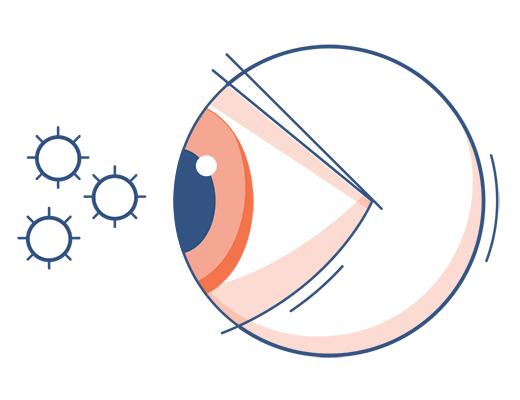 Eye Allergy Symptoms