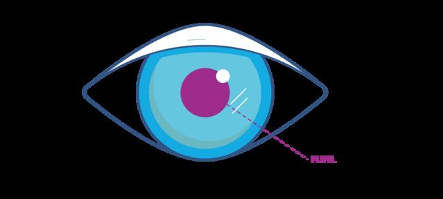Pupil Diagram