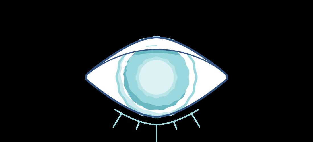 Cataracts Symptoms