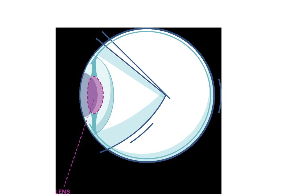 Eye Lens Diagram