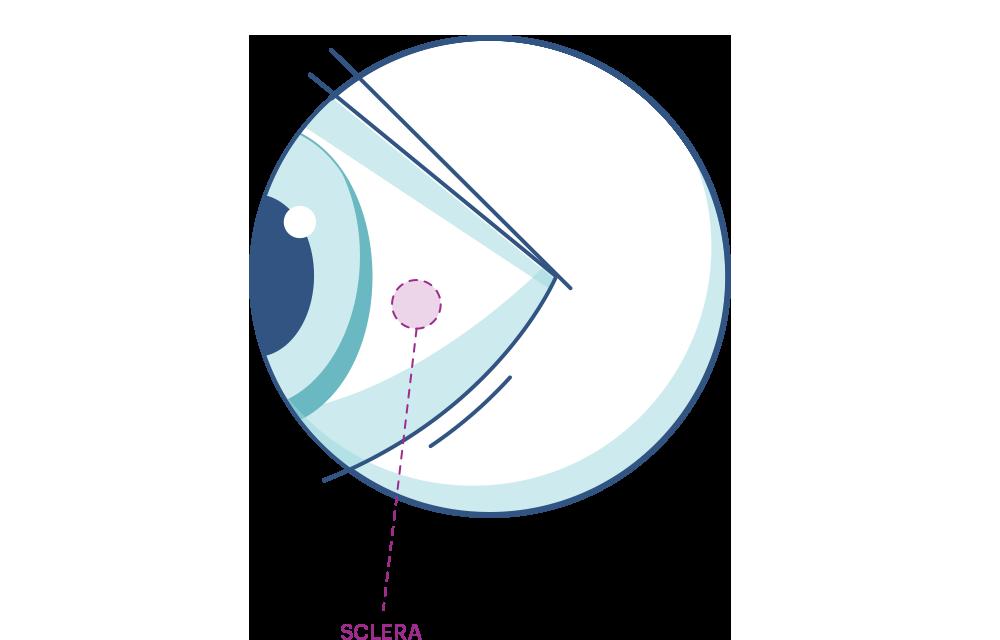 Sclera Diagram
